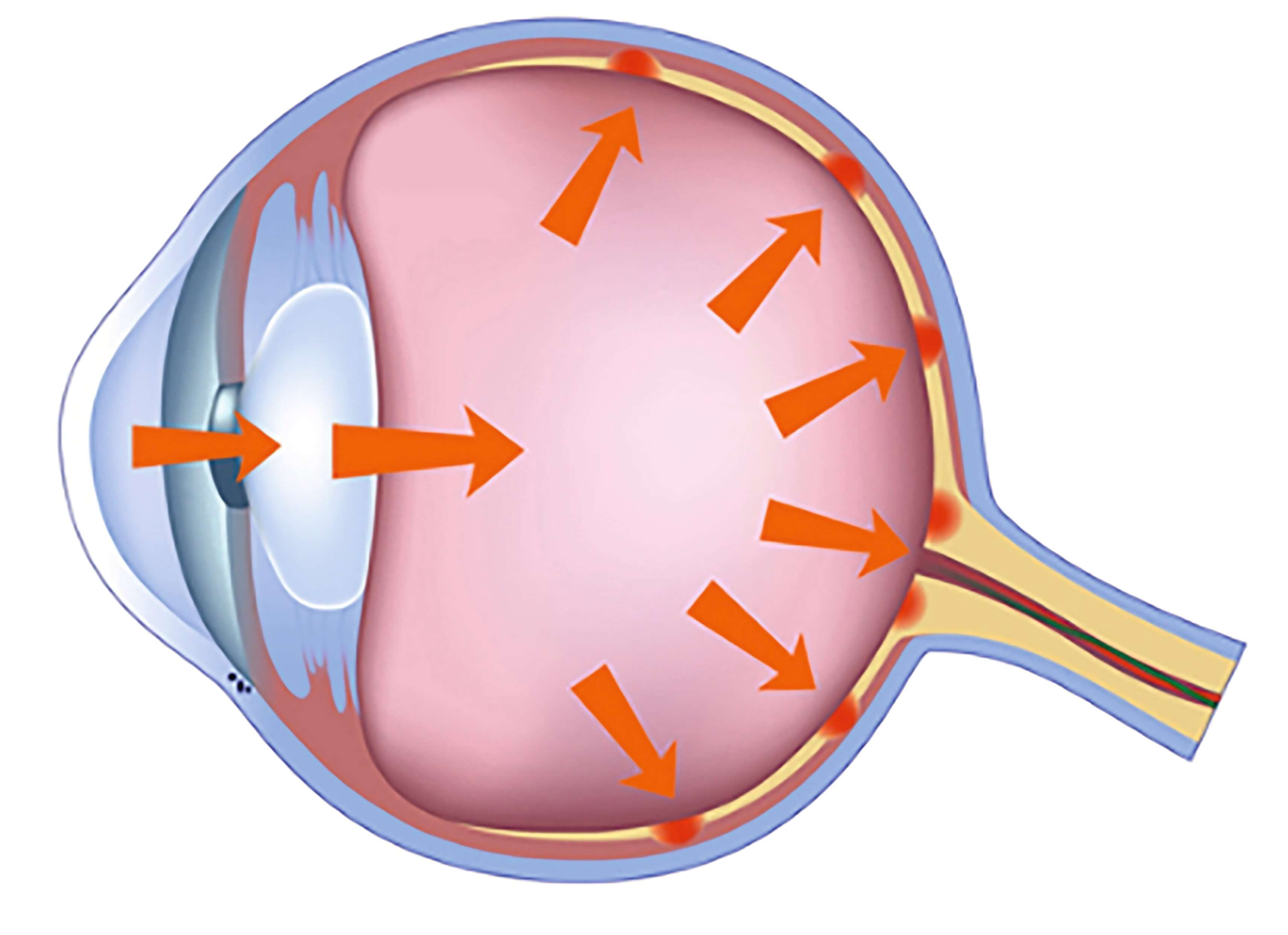 EYETECHCARE pressure inside the eye rises, compressing the optic nerve and tissue of the retina